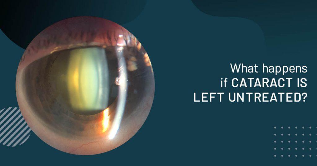 ophthalmologist Sydney